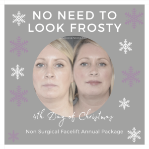 4th day of christmas 3 point face list with dermal fillers indulgence beauty