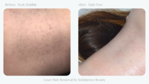 before and after neck hair laser hair removal indulgence beauty daventry