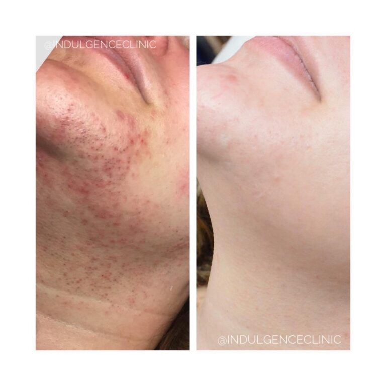 Dermapen and endymed acne and scarring Banbury, Dermapen and endymed acne and scarring Buckinghamshire, Dermapen and endymed acne and scarring Daventry, Dermapen and endymed acne and scarring Leamington Spa, Dermapen and endymed acne and scarring Leicestershire, Dermapen and endymed acne and scarring Milton Keynes, Dermapen and endymed acne and scarring Northampton, Dermapen and endymed acne and scarring Northamptonshire, Dermapen and endymed acne and scarring Rugby, Dermapen and endymed acne and scarring Towcester, Dermapen and endymed acne and scarring Warwickshire