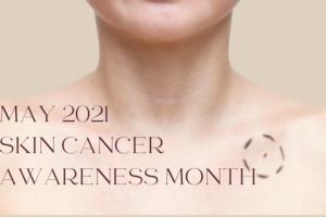skin cancer awareness month may 21 indulgence blog