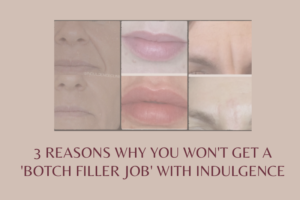 why you won't get a botched filler job with indugence beauty daventry, Warwick, rugby, northamptonshire, Buckinghamshire