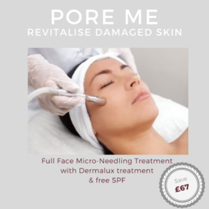 fractional needling, micro needling, indulgence beauty, enlarged pores, fine lines and wrinkles, cellulite, daventry, Northamptonshire, Buckinghamshire, Leicestershire, Warwickshire, rugby