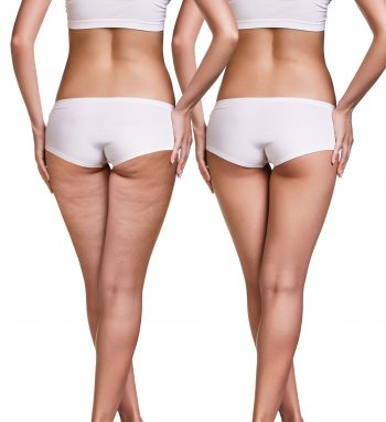 Female buttocks before and after cellulite skin isolated on white