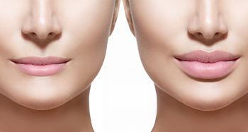 Lip filler Banbury, Lip filler Buckinghamshire, Lip filler Daventry, Lip filler Leamington Spa, Lip filler Leicestershire, Lip filler Milton Keynes, Lip filler Northampton, Lip filler Northamptonshire, Lip filler Rugby, Lip filler Towcester, Lip filler Warwickshire